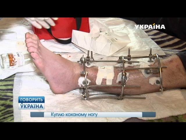 Куплю любимому ногу (полный выпуск)   Говорить Україна