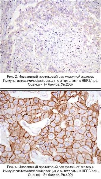 Glissade иммуногистохимия при раке яичника того, из-за