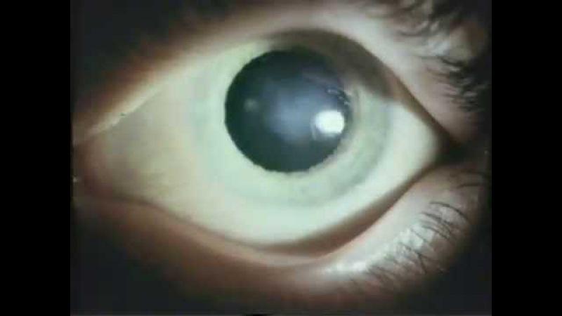 Патология глаз при болезнях у детей © Pathology in diseases of the eye in children