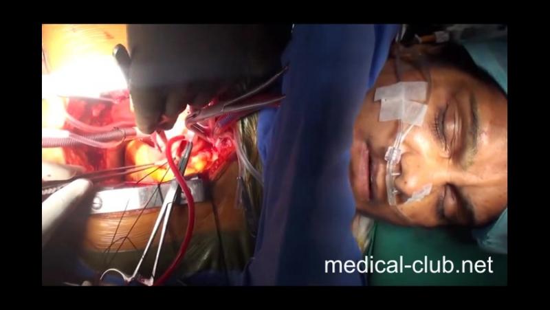 Пациент проснулся во время операции на сердце