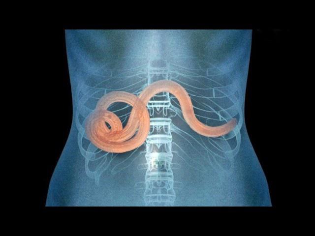 Паразитические черви, гельминты (рассказывает профессор Нелли Тумольская)