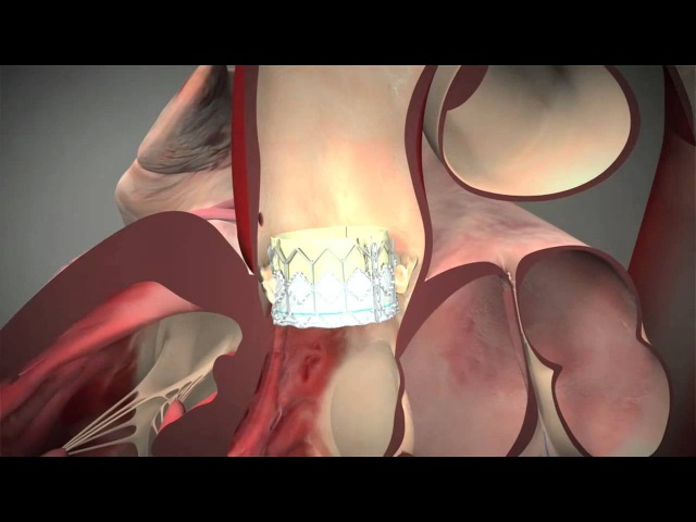 Ask The Expert: TAVR Procedure Explained By Dr. Charles Davidson