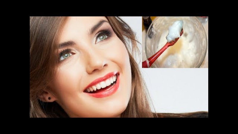 Cuando vayas al dentista le reclamaras porque jamás te dijo que esto sacas el sarro enseguida