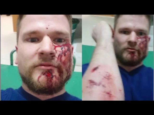 КАДЫРОВ Посадил На БУТЫЛКУ Полицейских и ФCБ за Задержание Чеченок в Воронеже