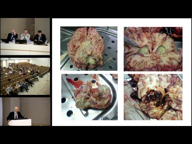 Нозокомиальный менингит в нейрохирургической клинике Савин И.А. 22.04.17