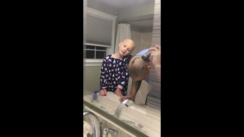 Dad shaves his head to match daughter - 979496