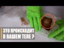 🔥 ЭКСПЕРИМЕНТ: Что Способствует Росту Грибков в Теле | Лучшее средство против грибков и кандиды