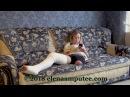 Elena amputee preview - Long Leg Cast