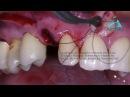 Implante Imediato Associado ao Osso Bovino e à técnica de Landsberg - Full HD