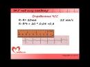 Urok 3 Videokurs EKG pod silu kazhdomu