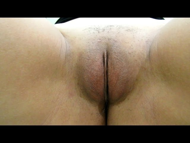 Case 382 Video 4: Barbie Chee-Bye-plasty (Labiaplasty and fat transfer to female external genital)
