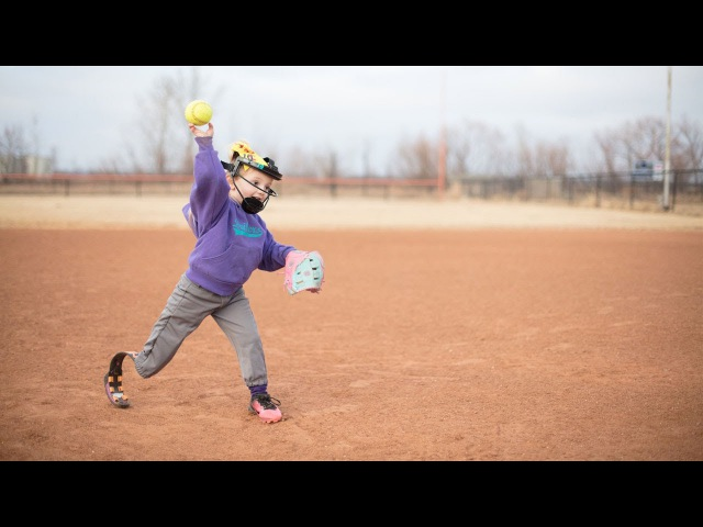 Young Amputee Is Sports All Star
