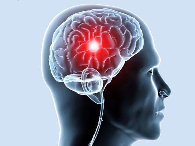 мозг, гипоталамус влияние аффирмаций, воздействие на психику