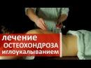 Лечение иглоукалыванием. 🙆 Лечение остеохондроза позвоночника иглоукалыванием. Клиника ТАО