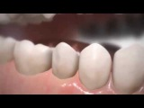 Denta Seal от трещин и кариеса, пломбирующая зубная паста Дента Сил