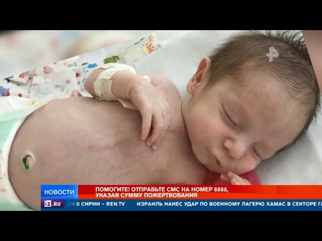 РЕН ТВ собирает деньги на спасение 4-месячного Данилы со сложнейшим пороком серд...