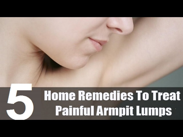 5 Home Remedies for Armpit Lumps.