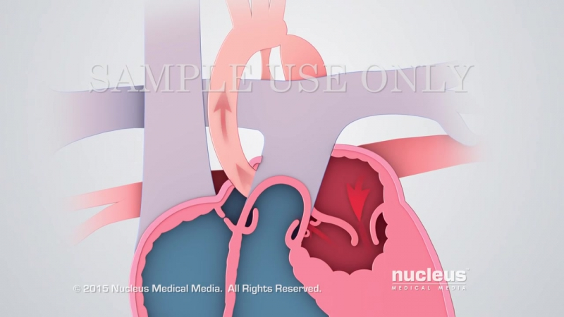 Hypoplastic Left Heart Syndrome HLHS Nucleus Health