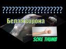 Больной большой палец у белой вороны   To stick out like a sore thumb / To be a sight for sore eyes