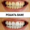 Отбеливание зубов Самара White&Smile