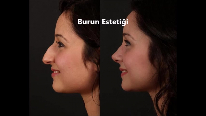 Burun Estetiği Dr Mustafa Bilazer