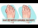 ✅Косточки на ноге исчезнут через пару недель Возьми да натри их обычным