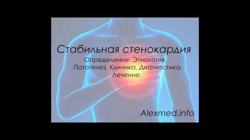 Стенокардия клиника диагностика
