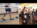 Amputee Walks In Fashion Runway After Botched Surgery