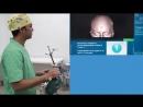 Нейрохирургическая навигация Пункционная биопсия опухоли головного мозга