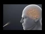 Удаление опухоли головного мозга