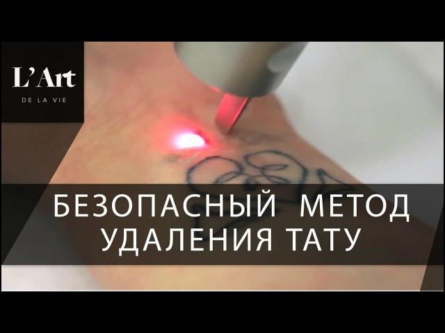 Лазерное удаление тату. 🗤 PicoSure самый мощный лазер для удаления тату.