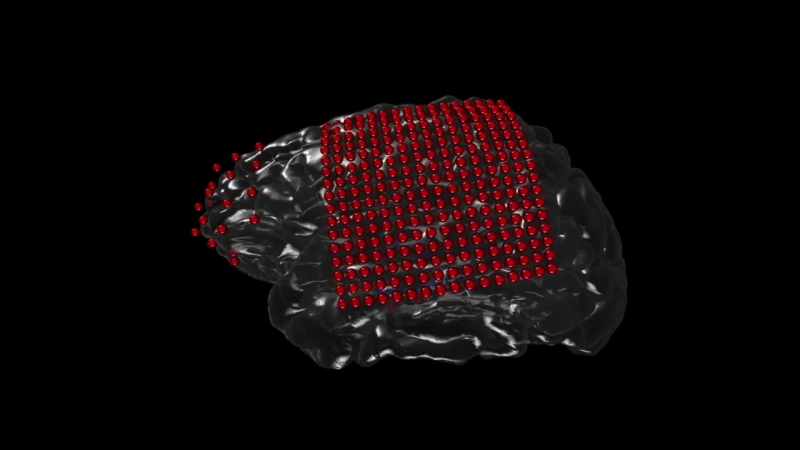 3D Reconstruction of ECoG Implanted Electrodes For Epilepsy Monitoring