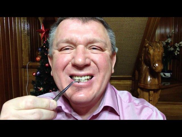 Как ставят чип RFID в зубы пациентов. Предприниматель миссионер Лопатин Евгений Борисович.