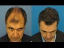 Эффективное лечение облысения у мужчин Восстановление роста волос на голове Миноксидил отзывы