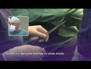 Бокерия провел уникальную операцию пациента с критическим пороком сердца