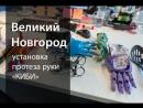 Великий Новгород установка протеза руки КИБИ