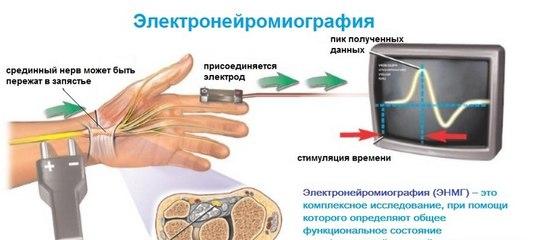 Центр рассеянного склероза ростов на дону