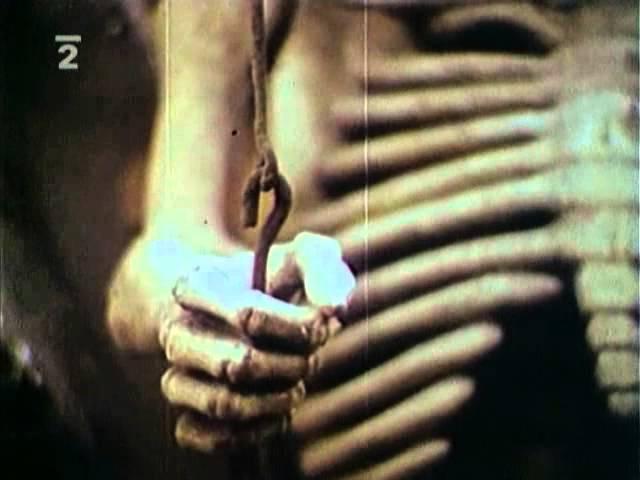 Lekár umierajúceho času - 03 TV seriál 1983, SK