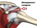 Пре-реабилитация плечевого сустава. Инструкция для онлайн-клиентов