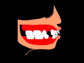 Ортодонтическое лечение. Пропедевтика.