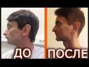 3 мес после челюстно лицевой операции 10 лайфхаков для тех кто решился