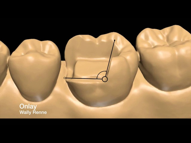 Posterior tooth preparations inlay, onlay, crownlay and crown