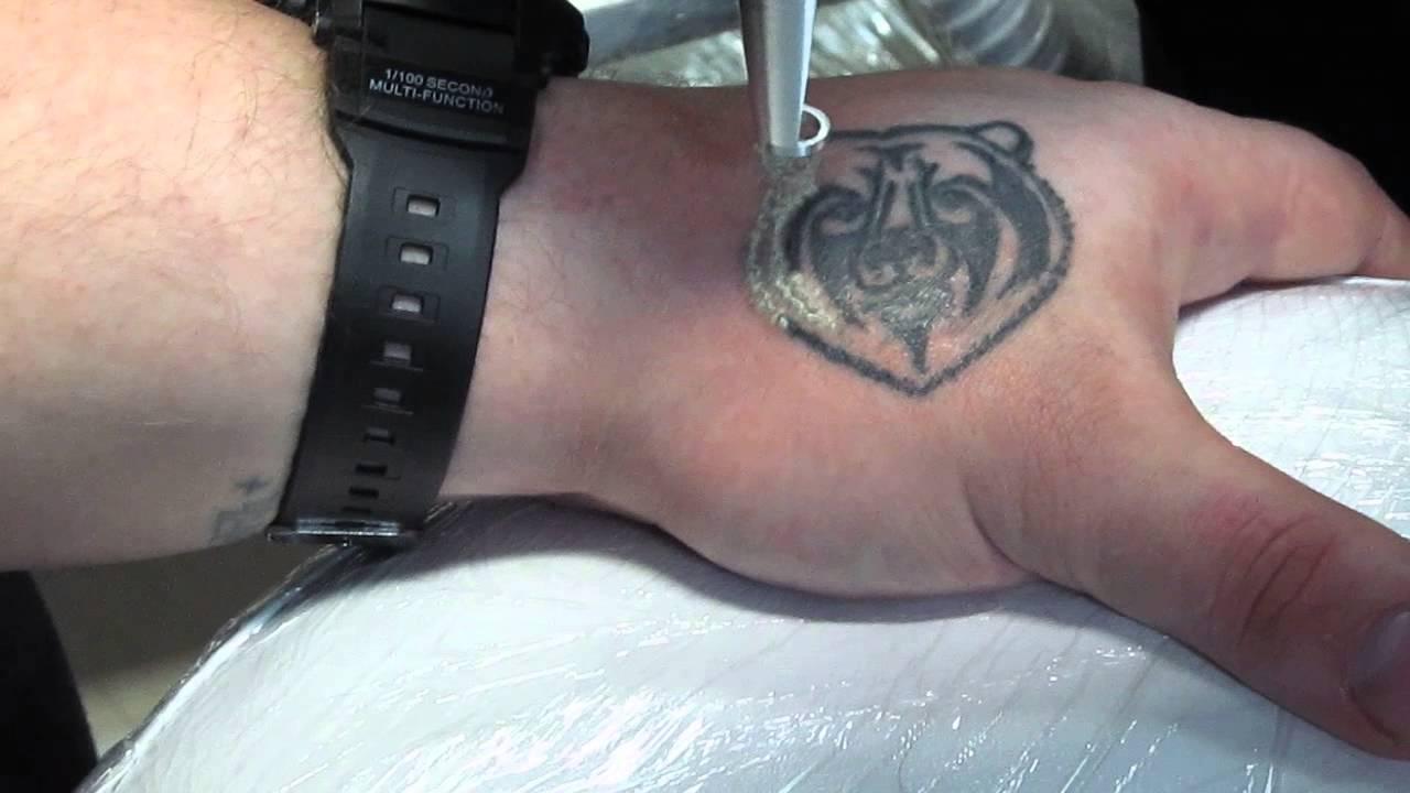 От чего зависит скорость удаления татуировки лазером