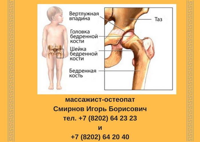 Диагностика суставов в череповце коллагена для лечения артрозов суставов