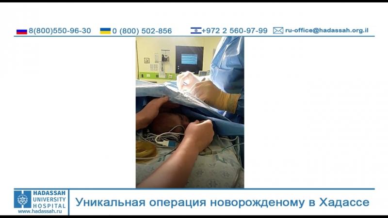 Уникальная операция новорожденному под местной анестезией в клинике Хадасса