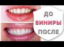 Виниры. Все этапы установки и изготовления | Зубы до и после установки виниров | Дентал ТВ 12