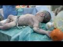 Médicos salvando a vida de um bebê na Síria emocionante