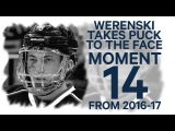 NO. 14 Werenski takes a puck to the face in the playoffs