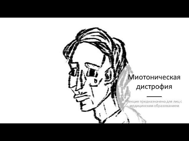 Миотоническая дистрофия