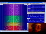 Brain Coherence Measured with Dan Winter
